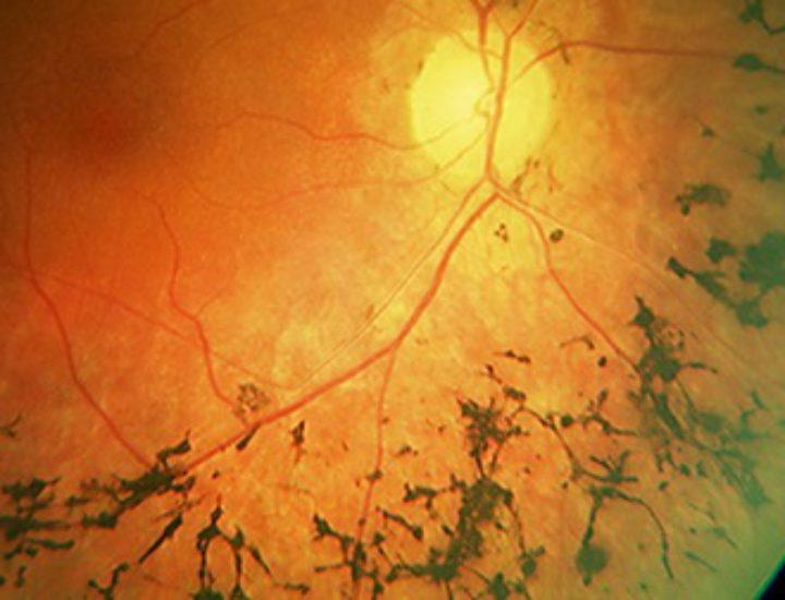 Абиотрофия сетчатки глаза