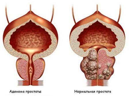 Аденома предстательной железы заболевание и лечение