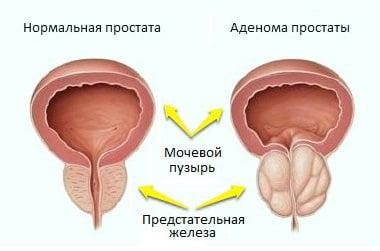 Влияние температуры на аденому простаты