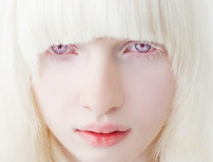 Альбинизм у человека