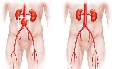 Эндопротез аневризмы брюшной аорты