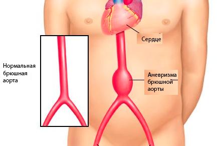 Эндопротезирование брюшной аорты это