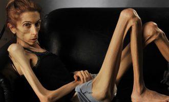 Анорексия у девушек