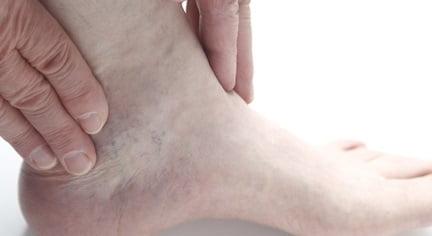 Артрит голеностопного сустава - симптомы, причины и лечение