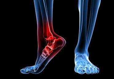 Изображение - Артропатия голеностопных суставов 2 степени Artrit-golenostopnogo-sustava-2
