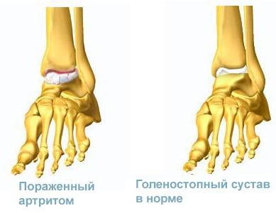 Изображение - Артропатия голеностопных суставов 2 степени Artrit-golenostopnogo-sustava-chto-eto