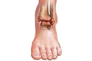Изображение - Артропатия голеностопных суставов 2 степени Artrit-golenostopnogo-sustava-foto