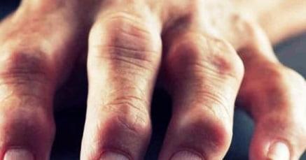 Чем лечить артрит пальцев рук