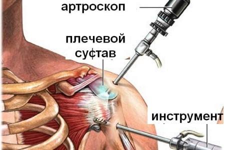 Изображение - Артрит левого плечевого сустава лечение Artrit-plechevogo-sustava-lechenie