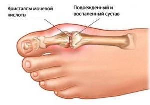 Артрит суставов стопы лечение медикаментами