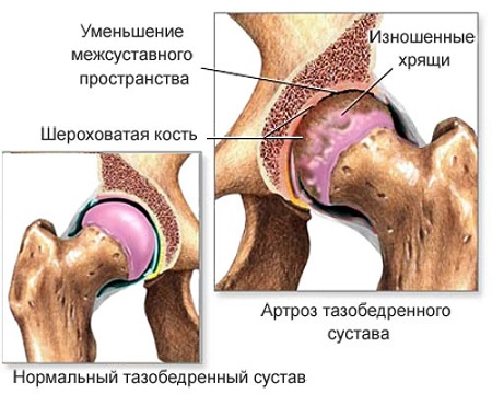 Артрит тазобедренного сустава препараты
