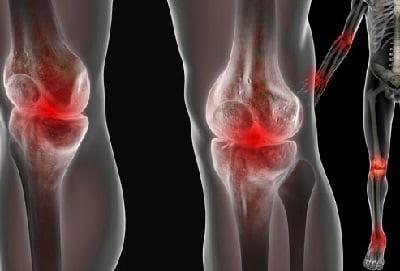 Остеоартропатия плечевого сустава