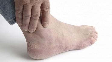 Диета при артрозе голеностопного сустава и гемофилии В