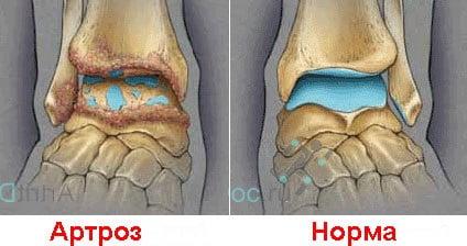 Изображение - Артроз г стопного сустава Artroz-golenostopnogo-sustava