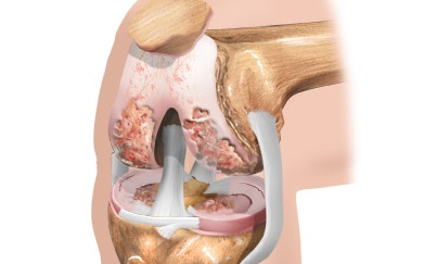 артроза тазобедренного сустава