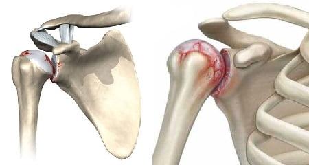 Изображение - Как лечить артрит артроз плечевого сустава Artroz-plecha