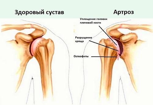 Изображение - Степени артроза плечевого сустава Artroz-plechevogo-sustava-chto-eto