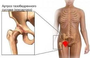 Тазобедренный сустав симптомы болезни лечение упражнения