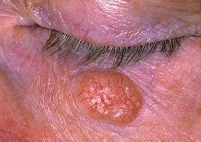 Базалиома (базальноклеточный рак) кожи симптомы и признаки