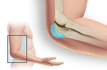 Как быстро вылечить бурсит локтевого сустава