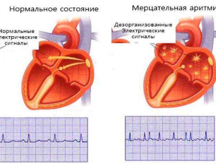 Мерцательная аритмия сердца