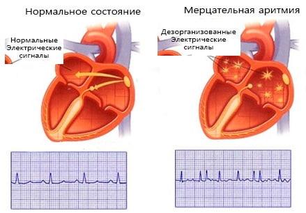 Мерцательная аритмия лечение медикаментозное кардиология