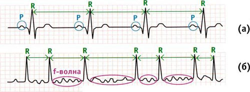 Сердечная недостаточность при фибрилляции