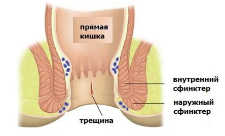 Трещина на анусе чем лечить