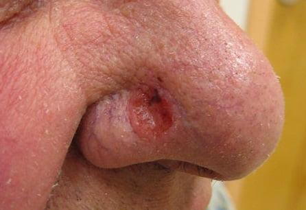 Базальноклеточный рак базалиома лечение