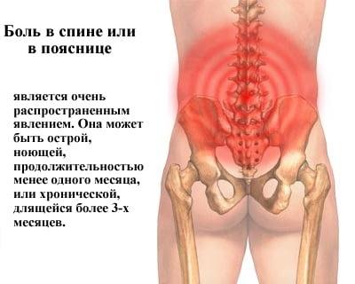 Боли в спине пояснице причины лечение