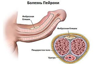 Причины возникновения болезни Пейрони и эффективные методы лечения
