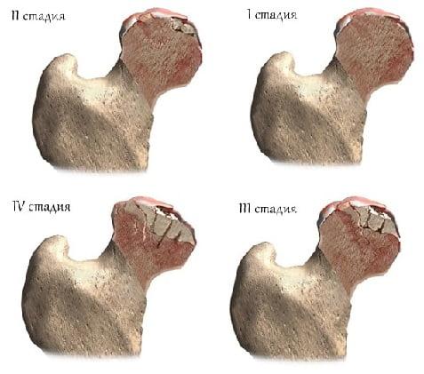 Болезнь Пертеса тазобедренного сустава у детей: симптоматика и причины возникновения, процесс развития болезни, диагностика, профилактика и лечение болезни Пертеса у ребенка