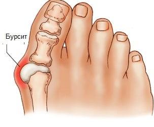 Бурсит стопы – симптомы и лечение, фото