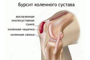Что такое бурсит колена, его симптомы и лечение