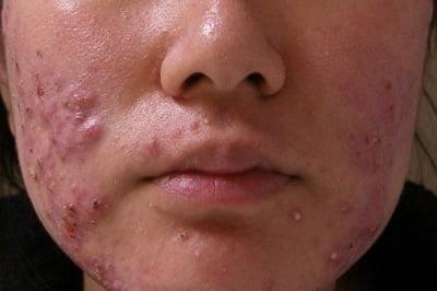Чем вылечить демодекоз на лице