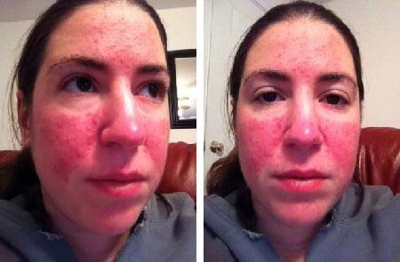 Чем лечат демодекоз на лице