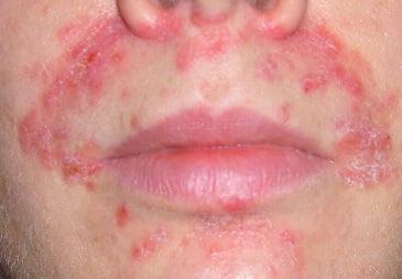 Как выглядят дерматиты у взрослых thumbnail