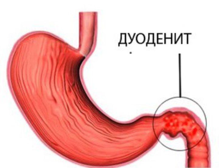 Дуоденит желудка