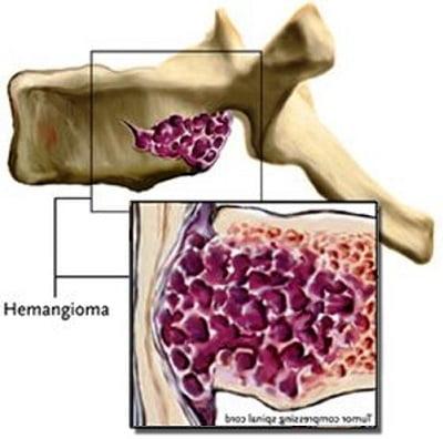 Как лечить гемангиому позвоночника