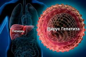 Гепатит А - что это такое и как передается, как лечить и как избежать гепатита А, симптомы
