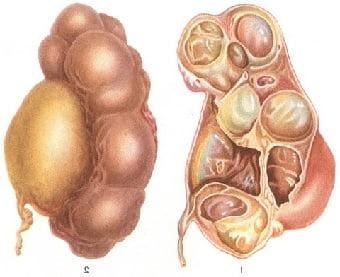 Гидронефроз правой или левой почки: симптомы, лечение
