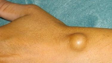 Гигрома - что это такое? Фото на руке, ноге, лечение и прогноз