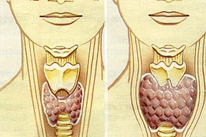 Гипотиреоз - симптомы, лечение, прогноз