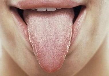 Лечение глоссита языка в домашних условиях народными средствами