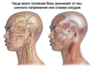 Кто избавился от головной боли напряжения