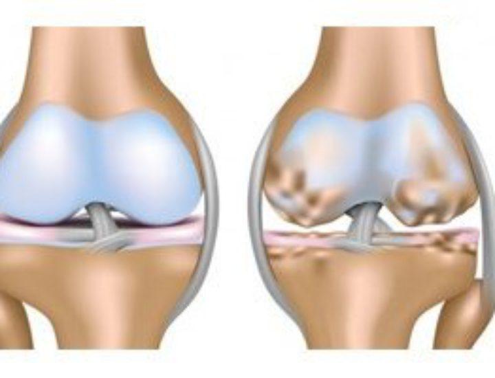 Гонартроз коленного сустава 2 степени