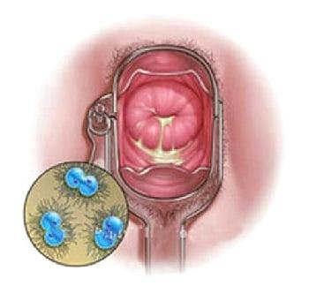 Схема лечения хронической гонореи у женщин -