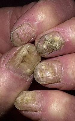 Заболевания ногтей: причины, типы и профилактика