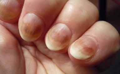 Грибок ногтей на руках, лечение в домашних условиях