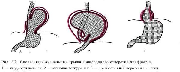 Грыжа пищеводного отверстия диафрагмы (ГПОД): лечение, стадии и симптомы